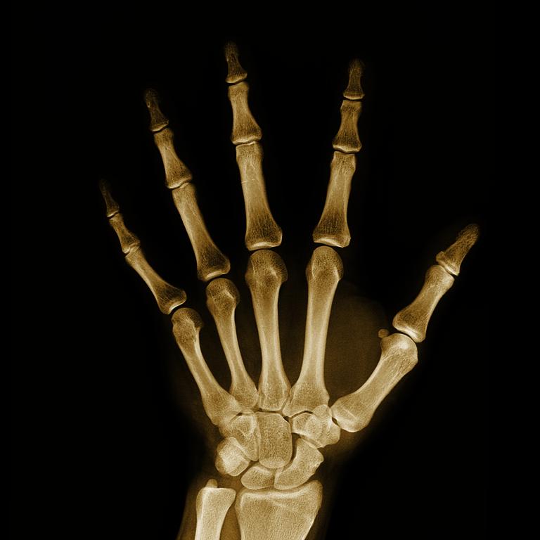 Skelett und Muskulatur - Röntgenbild von einer Hand